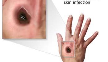 A krónikus prosztatitis hunyja Expressz a prosztatitisből