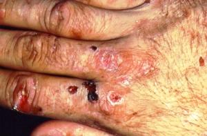 Pseudoporphyria